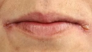 Долго не проходят заеды в уголках губ