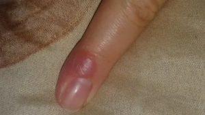 Желтое болезненное пятно на пальце