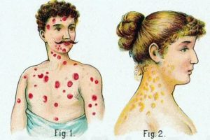 Может ли это быть рецидив сифилиса?
