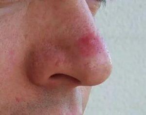 Вылез на носу огромный прыщ,  как лечиться?