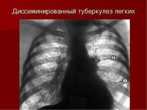 Что такое петрификаты на флюорографии?