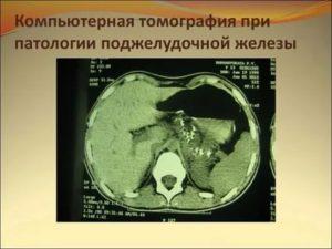 Имеет ли смысл делать КТ или МРТ поджелудочной при хороших анализах?