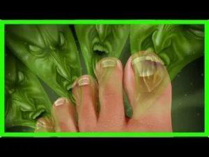 Запах от ногтей на ноге