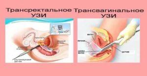 Опасность вагинального УЗИ без презерватива