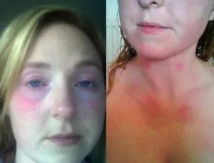 Аллергия на горячую воду, как поступать?