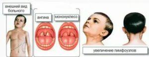 Перенесённый мононуклеоз и планирование беременности