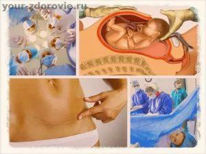 Естесственные роды или кесарево сечение