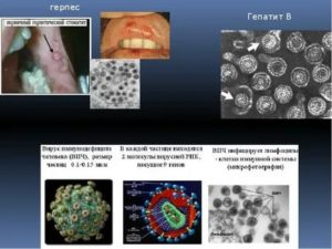 Выявлен вирус герпеса и хламидиоз