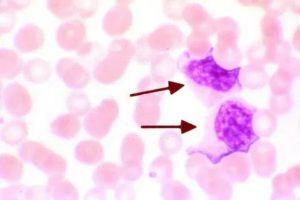 Атипичные лимфоциты, частые простуды, аллергия