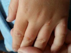 Что это на пальце у ребенка?