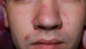 Прыщи на лице в 17 лет