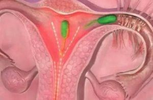 Можно ли забеременеть, если сперма попала на половые губы?