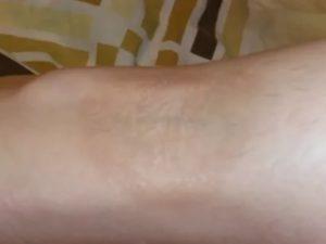 Темное пятно на ноге у ребенка