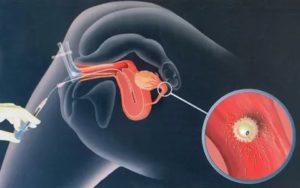 Можно ли забеременеть, если проглотить сперму?