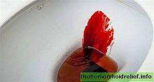 Кровь в кале во время месячных