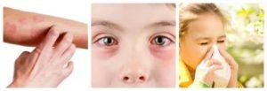 Точно ли показывает - есть ли аллергия или нет?