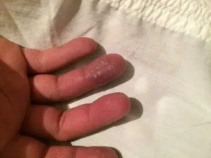 Белая точка на пальце