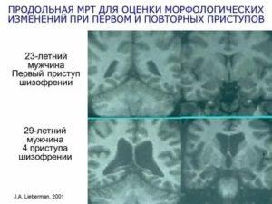 Правда ли, что шизофрению можно определить с помощью МРТ?