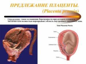 Поднимется ли плацента?