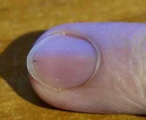 Заметил 2 дня назад пятнышко под ногтем