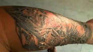 Шелушится кожа после татуировка