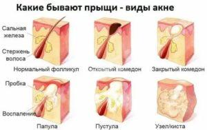 Прыщи и гнойники при менопаузе
