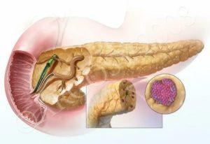 Может ли обостриться на нервной почве панкреатит?