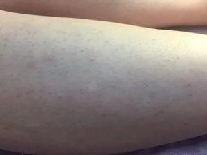 Сильно врастают волосы на ногах