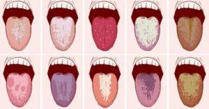 С чем может быть связана горечь во рту?