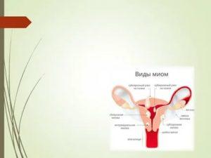 Обертывания при миоме матки
