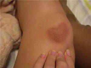 Содрал кожу на ноге, теперь там пятно