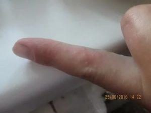 Появился пузырь на пальце, болит