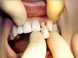 Крошатся зубы после родов, в какой форме можно принимать кальций?