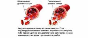 Влияет ли применение Эутирокса на уровень глюкозы и холестерина в крови?