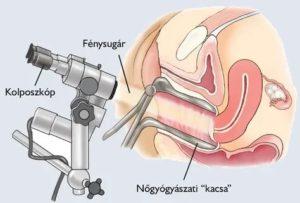 Как гинеколог проверяет состояние матки?