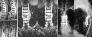 Показывает ли рентген позвоночника опухоли?