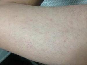 У меня на ногах маленькие красно-синие точки