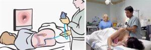 Можно ли делать колоноскопию и гастроскопию при температуре?