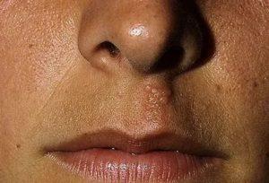 Воспаление под носом