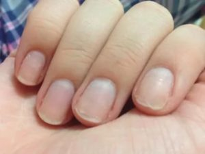 Дополнение к вопросу о пузырьках под ногтями после гель-лака