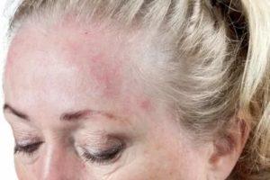 Аллергия на лак волос