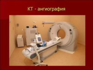 Что лучше - бронхоскопия или томография?