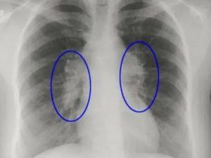 Видны ли на флюорографии увеличенные лимфатические узлы?