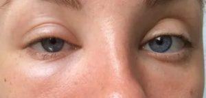 Отек глаза и переносицы