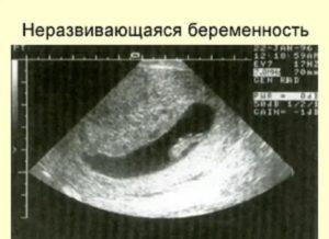 Может ли УЗИ ошибиться с диагнозом неразвивающаяся беременность?