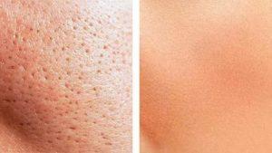 Жирная кожа на груди
