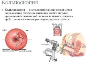 Боль после кольпоскопии