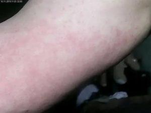 Странная сыпь на руке