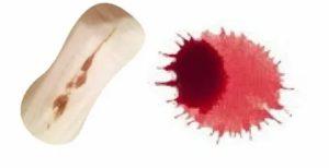 Кровь во время ПА