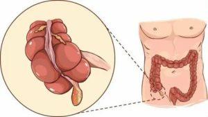 Вздутие живота после аппендэктомии